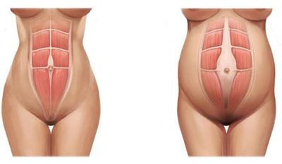 Distension abdominal despues embarazo